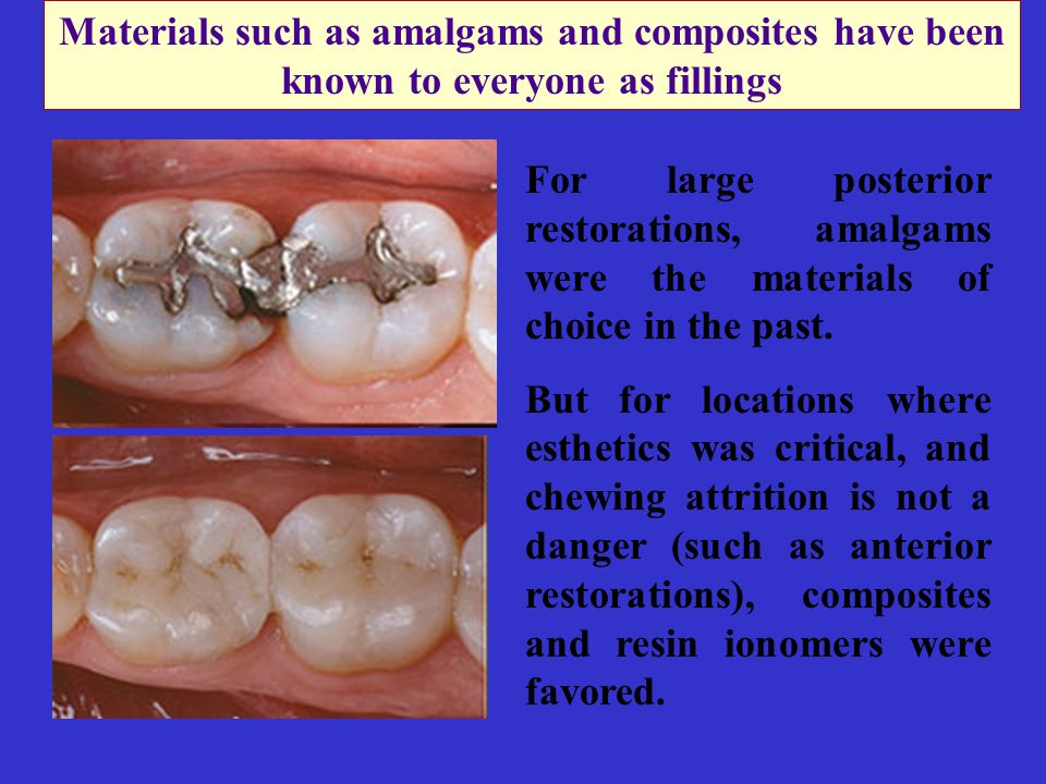 For large posterior restorations, amalgams were the materials of choice in the past.
