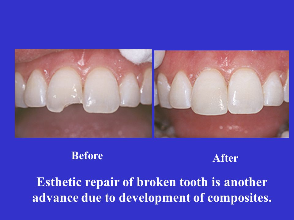 Before After Esthetic repair of broken tooth is another advance due to development of composites.