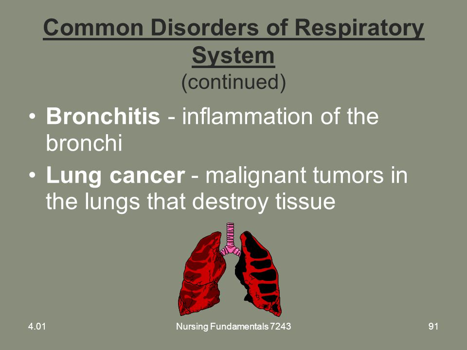 Nursing Fundamentals 724391 Common Disorders of Respiratory System (continued) Bronchitis - inflammation of the bronchi Lung cancer - malignant tumors
