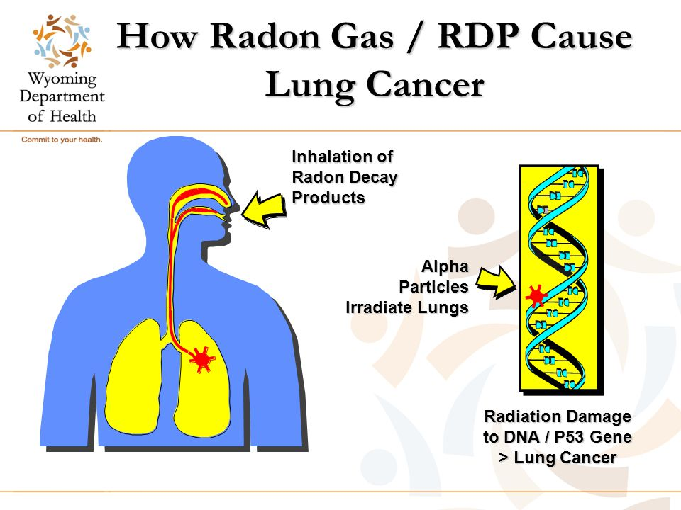 How Radon Gas / RDP Cause Lung Cancer Inhalation of Radon Decay Products AlphaParticles Irradiate Lungs Radiation Damage to DNA / P53 Gene > Lung Cancer