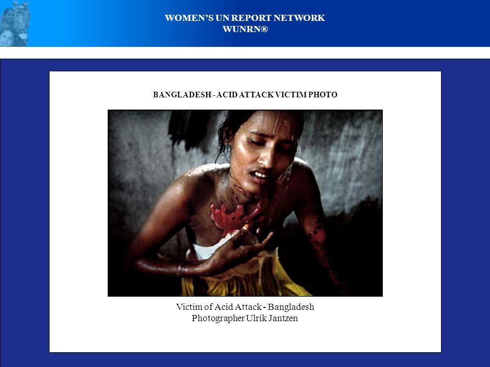 WOMEN'S UN REPORT NETWORK WUNRN® BANGLADESH - ACID ATTACK VICTIM PHOTO Victim of Acid Attack - Bangladesh Photographer Ulrik Jantzen