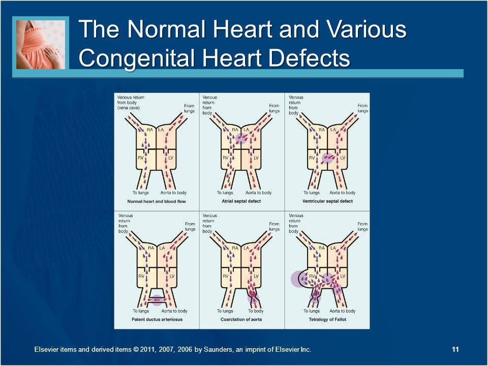 The Normal Heart and Various Congenital Heart Defects 11Elsevier items and derived items © 2011, 2007, 2006 by Saunders, an imprint of Elsevier Inc.
