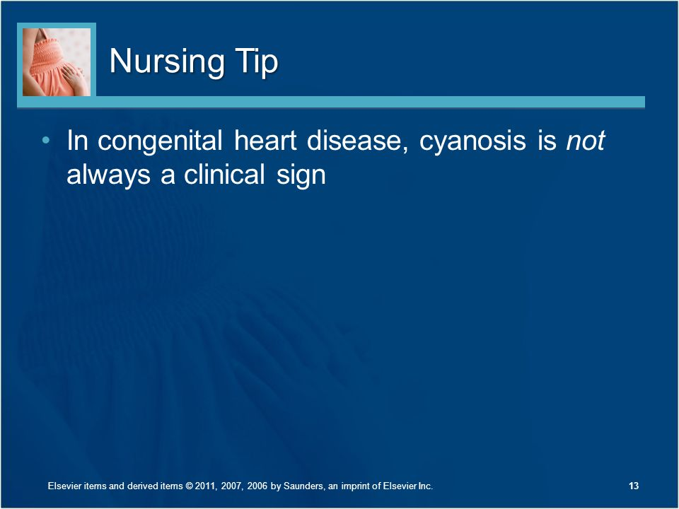 Nursing Tip In congenital heart disease, cyanosis is not always a clinical sign 13Elsevier items and derived items © 2011, 2007, 2006 by Saunders, an