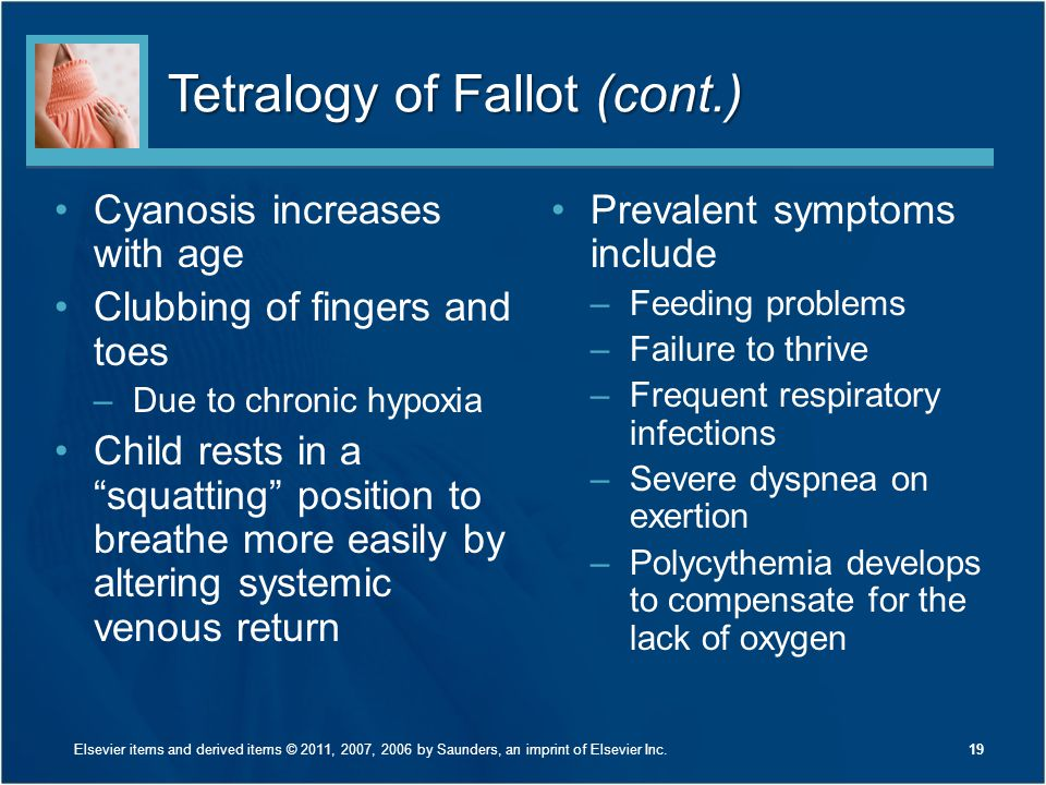 """Tetralogy of Fallot (cont.) Cyanosis increases with age Clubbing of fingers and toes –Due to chronic hypoxia Child rests in a """"squatting"""" position to"""
