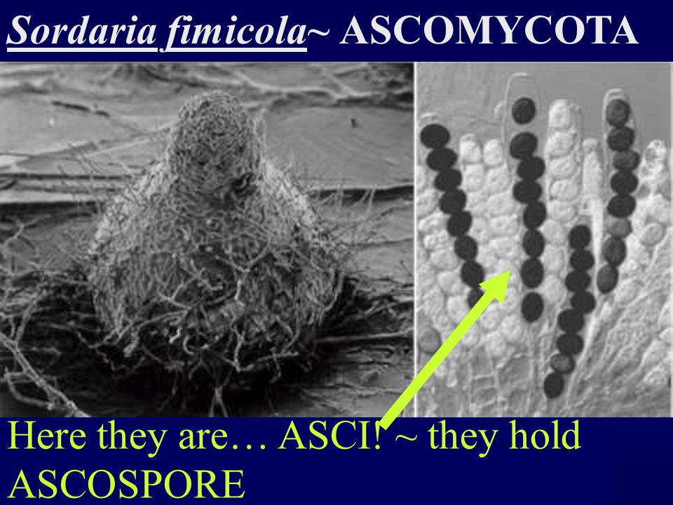Here they are… ASCI! ~ they hold ASCOSPORE
