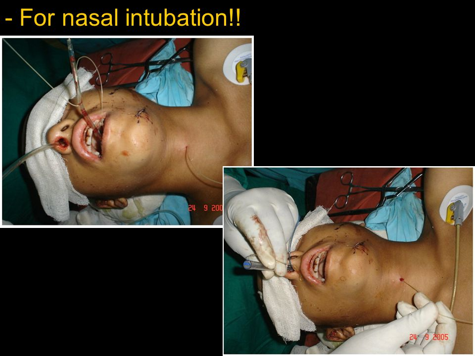 - For nasal intubation!!