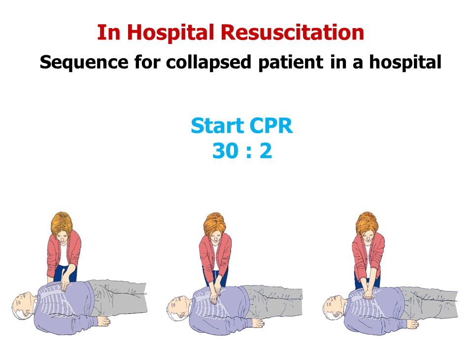 In Hospital Resuscitation Sequence for collapsed patient in a hospital Start CPR 30 : 2