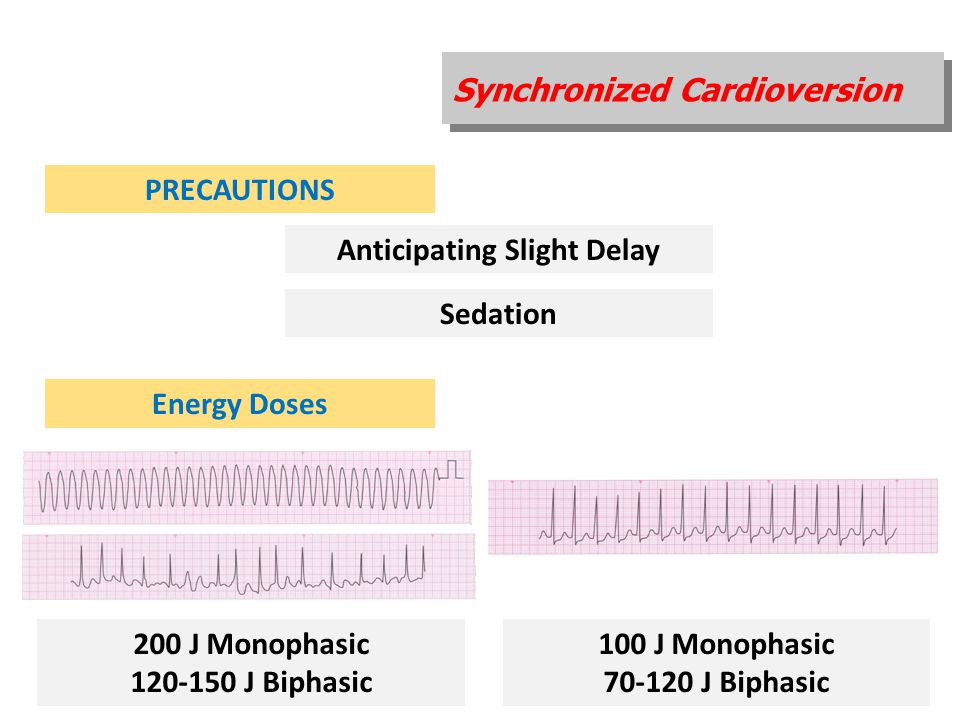 Synchronized Cardioversion PRECAUTIONS Anticipating Slight Delay Sedation Energy Doses 200 J Monophasic 120-150 J Biphasic 100 J Monophasic 70-120 J B
