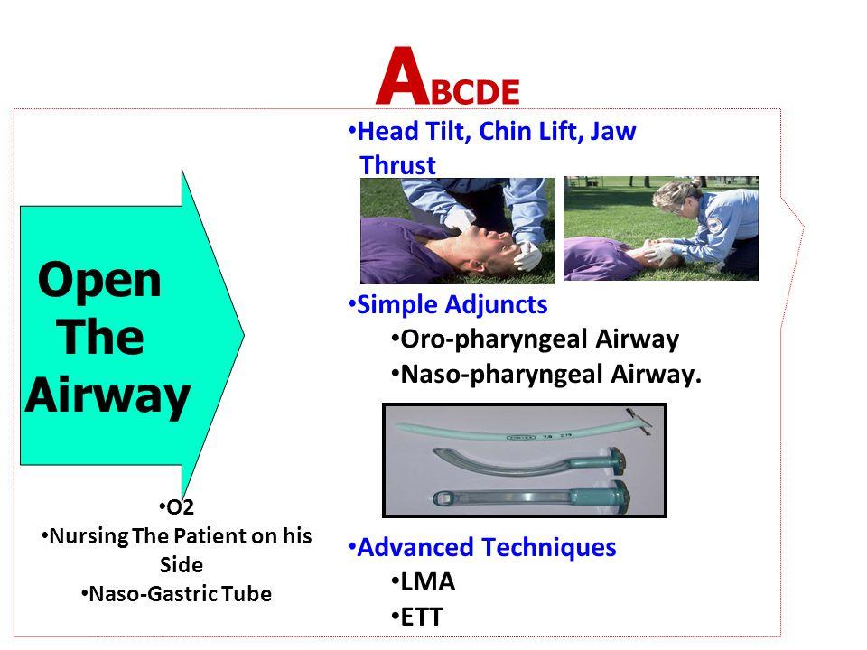 A BCDE Open The Airway Head Tilt, Chin Lift, Jaw Thrust Simple Adjuncts Oro-pharyngeal Airway Naso-pharyngeal Airway. Advanced Techniques LMA ETT O2 N