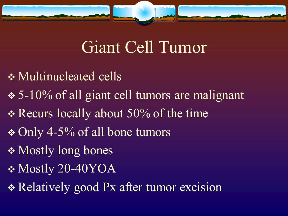 Giant Cell Tumor  Multinucleated cells  5-10% of all giant cell tumors are malignant  Recurs locally about 50% of the time  Only 4-5% of all bone tumors  Mostly long bones  Mostly 20-40YOA  Relatively good Px after tumor excision