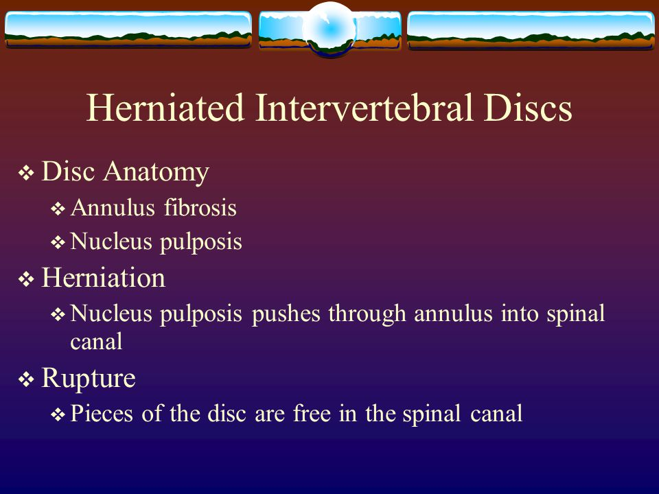 Herniated Intervertebral Discs  Disc Anatomy  Annulus fibrosis  Nucleus pulposis  Herniation  Nucleus pulposis pushes through annulus into spinal canal  Rupture  Pieces of the disc are free in the spinal canal