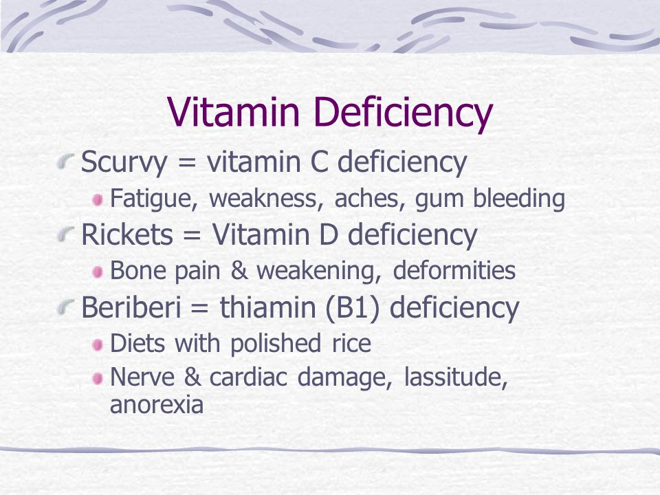 Vitamin Deficiency Scurvy = vitamin C deficiency Fatigue, weakness, aches, gum bleeding Rickets = Vitamin D deficiency Bone pain & weakening, deformit
