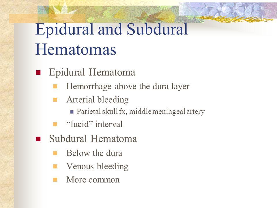 "Epidural and Subdural Hematomas Epidural Hematoma Hemorrhage above the dura layer Arterial bleeding Parietal skull fx, middle meningeal artery ""lucid"""