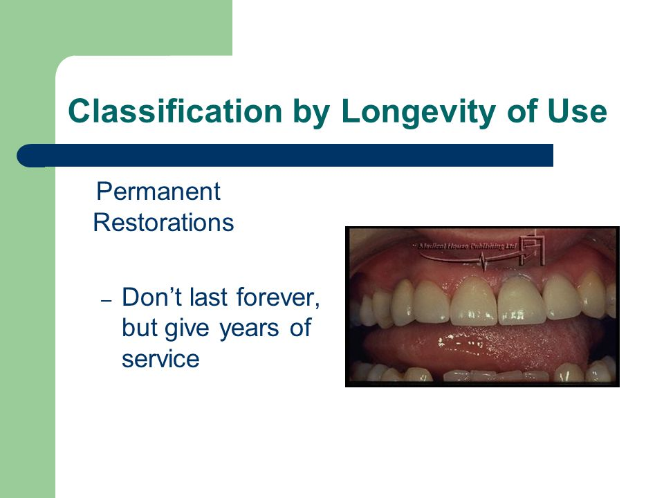 Classification by Longevity of Use Permanent Restorations – Don't last forever, but give years of service