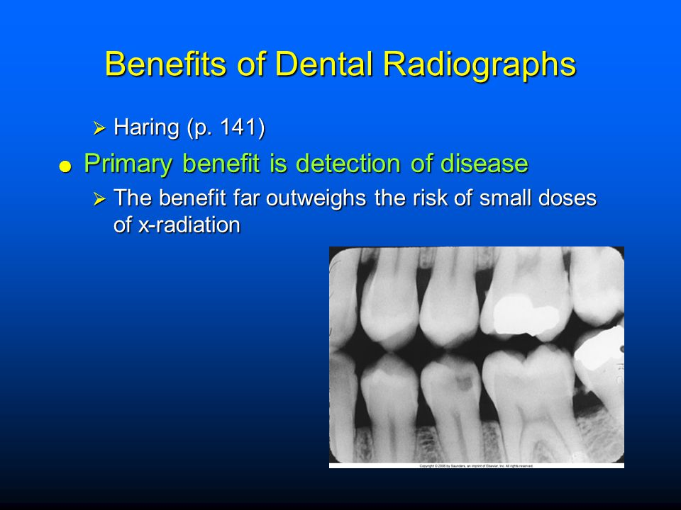 Benefits of Dental Radiographs  Haring (p. 141)  Primary benefit is detection of disease  The benefit far outweighs the risk of small doses of x-ra