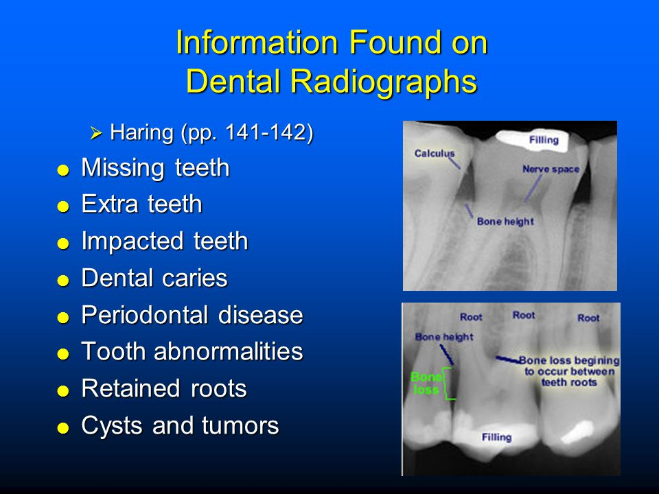 Information Found on Dental Radiographs  Haring (pp. 141-142)  Missing teeth  Extra teeth  Impacted teeth  Dental caries  Periodontal disease 