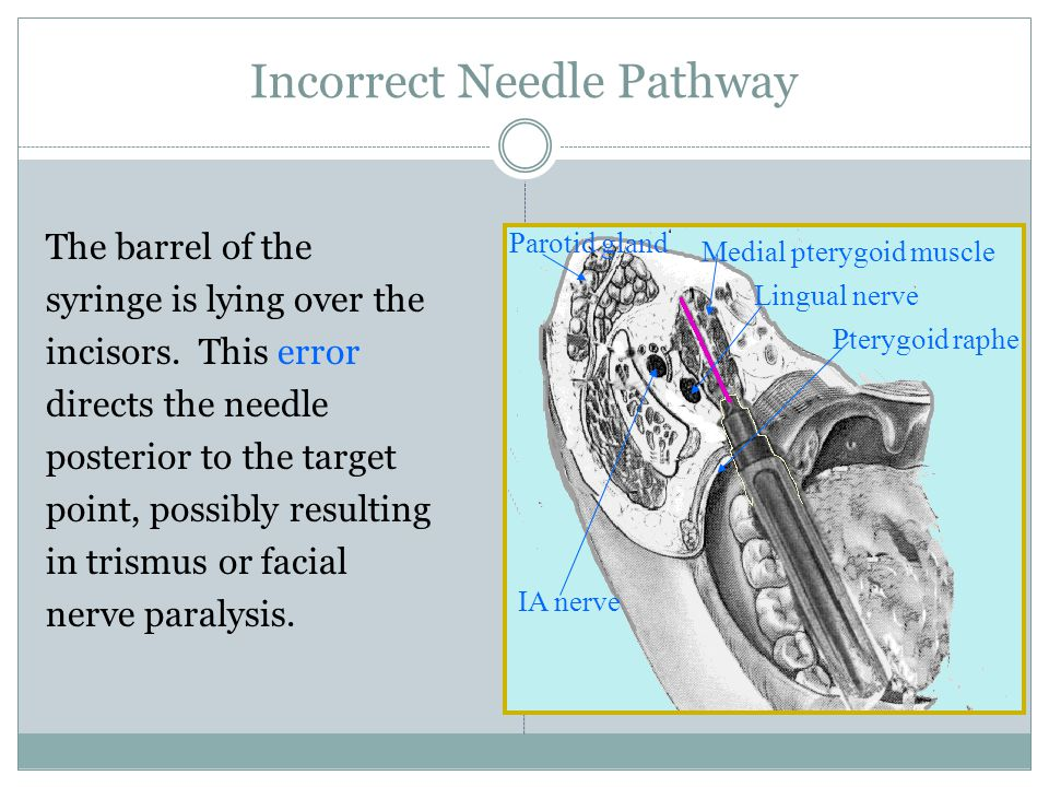 Correct Needle Pathway The barrel of the syringe should be over the opposite premolars. Bone should be contacted prior to depositing anesthetic. Ptery