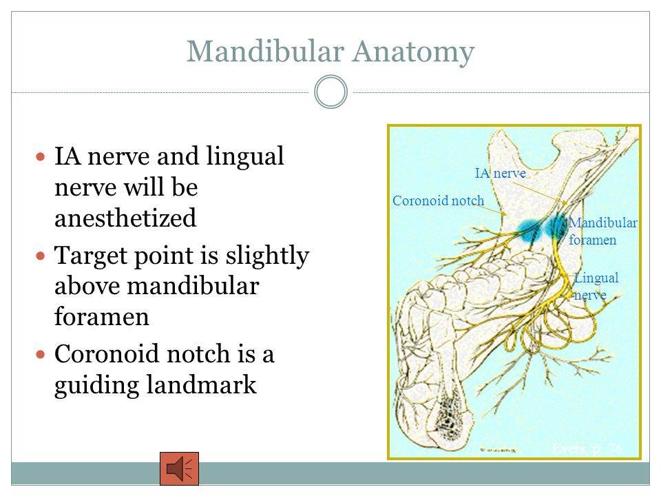 Mandibular Anatomy IA nerve and lingual nerve will be anesthetized Target point is slightly above mandibular foramen Coronoid notch is a guiding landmark Evers, p.