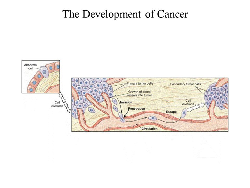 The Development of Cancer