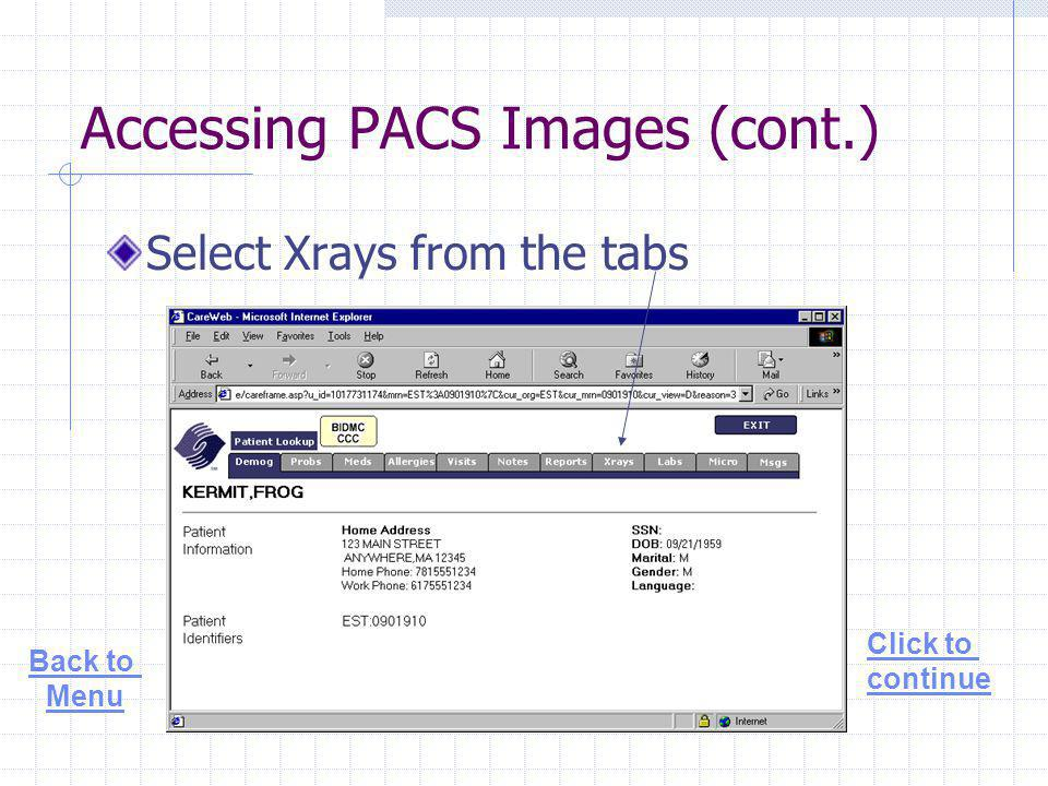 Accessing PACS Images (cont.) Select Xrays from the tabs Click to continue Back to Menu