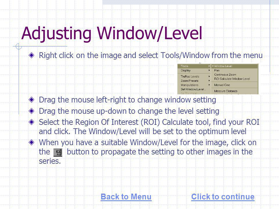 Adjusting Window/Level Right click on the image and select Tools/Window from the menu Drag the mouse left-right to change window setting Drag the mouse up-down to change the level setting Select the Region Of Interest (ROI) Calculate tool, find your ROI and click.