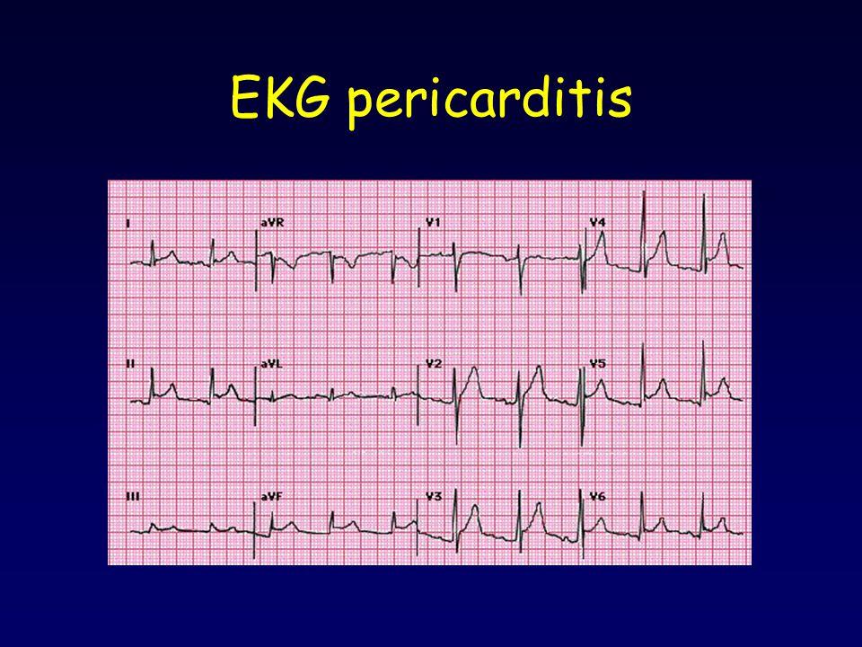EKG pericarditis