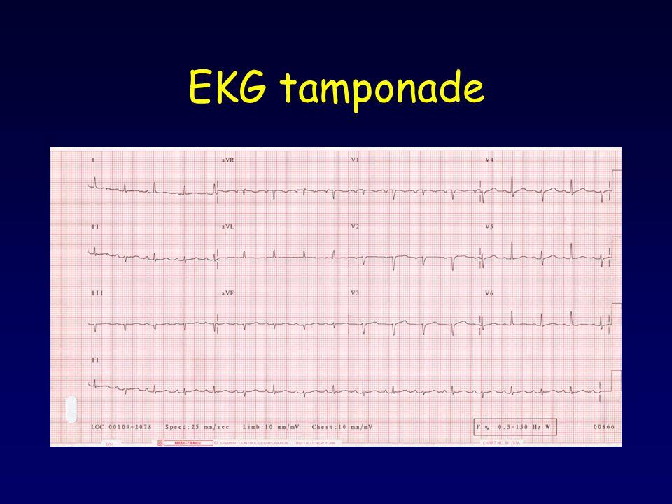 EKG tamponade