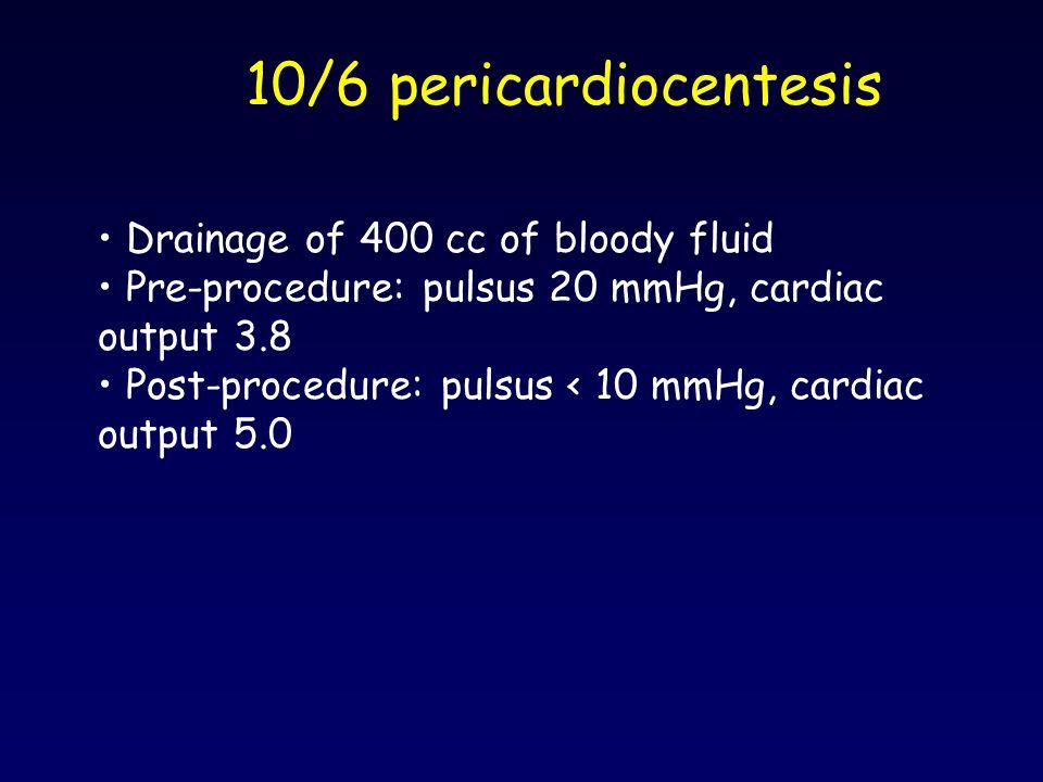 10/6 pericardiocentesis Drainage of 400 cc of bloody fluid Pre-procedure: pulsus 20 mmHg, cardiac output 3.8 Post-procedure: pulsus < 10 mmHg, cardiac
