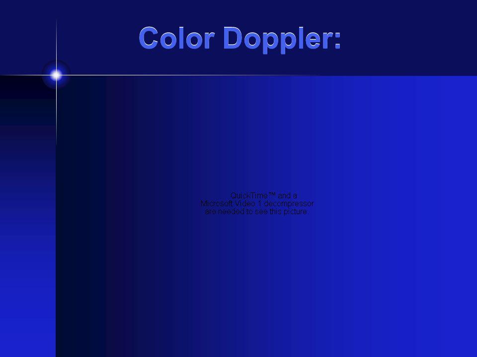 Color Doppler: