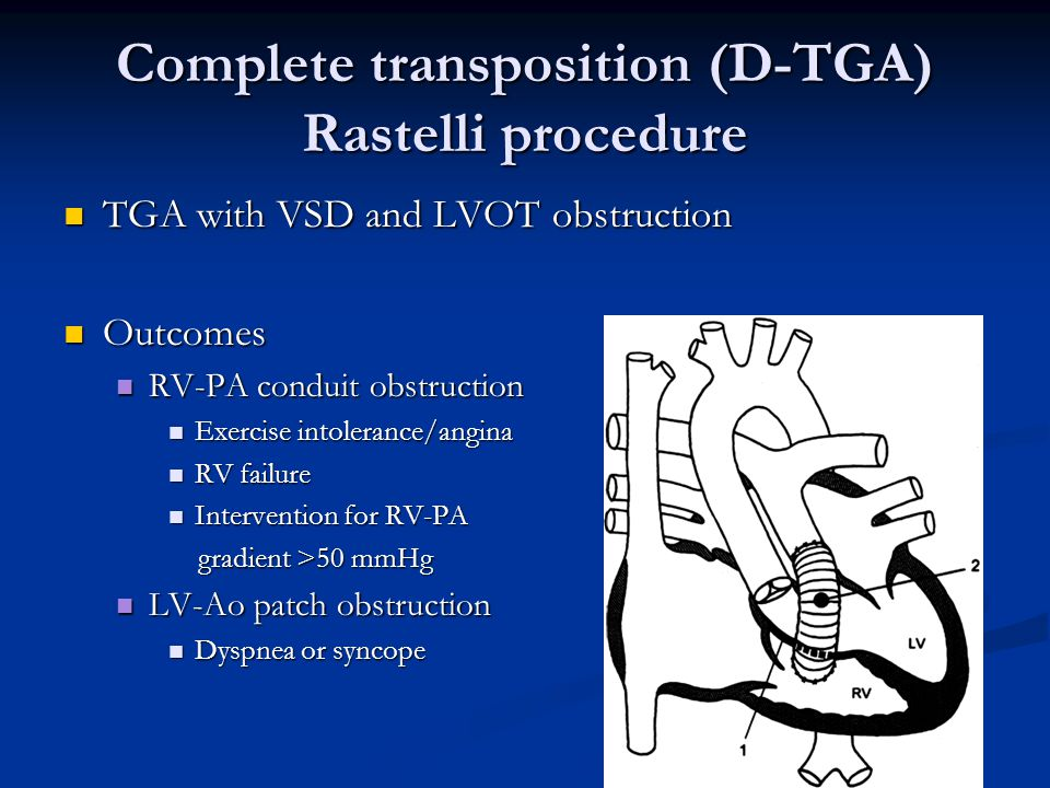 Complete transposition (D-TGA) Rastelli procedure TGA with VSD and LVOT obstruction TGA with VSD and LVOT obstruction Outcomes Outcomes RV-PA conduit