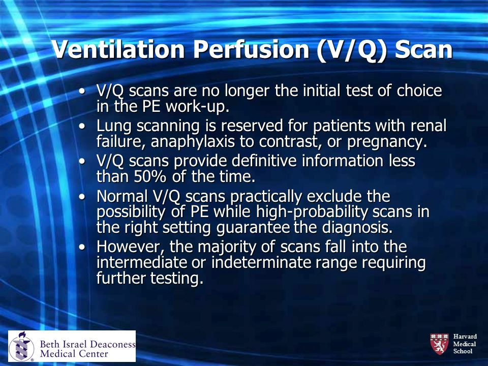 Harvard Medical School Ventilation Perfusion (V/Q) Scan V/Q scans are no longer the initial test of choice in the PE work-up.V/Q scans are no longer t