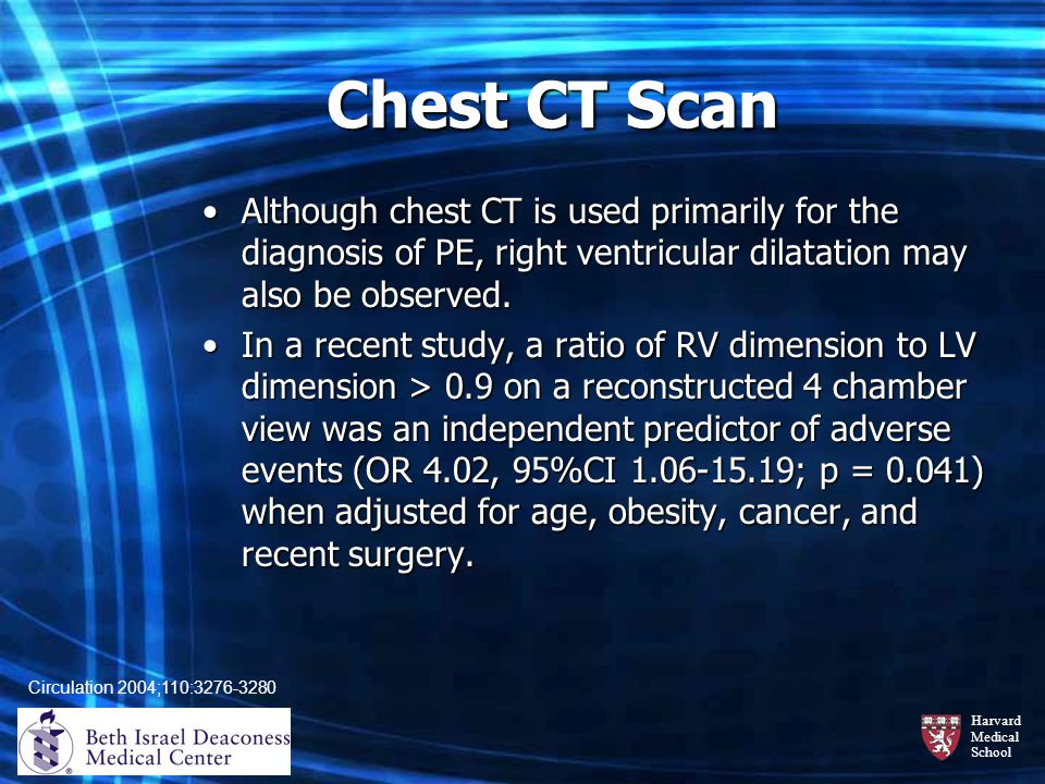 Harvard Medical School Chest CT Scan Although chest CT is used primarily for the diagnosis of PE, right ventricular dilatation may also be observed.Al