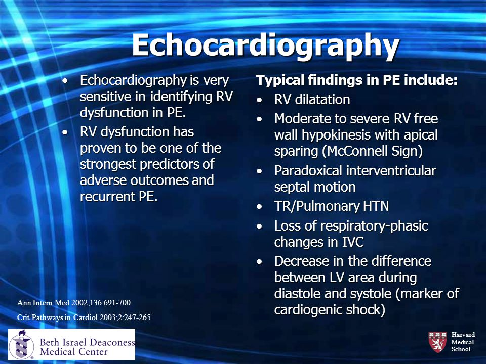 Harvard Medical School Echocardiography Echocardiography is very sensitive in identifying RV dysfunction in PE.Echocardiography is very sensitive in i