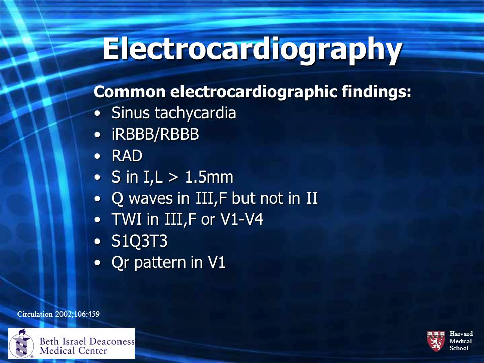 Harvard Medical School Electrocardiography Common electrocardiographic findings: Sinus tachycardiaSinus tachycardia iRBBB/RBBBiRBBB/RBBB RADRAD S in I