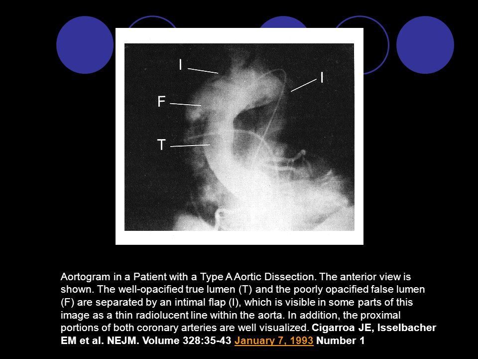 Aortogram in a Patient with a Type A Aortic Dissection.