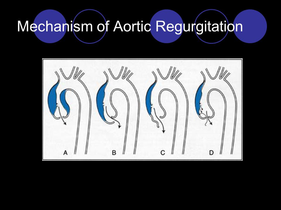 Mechanism of Aortic Regurgitation