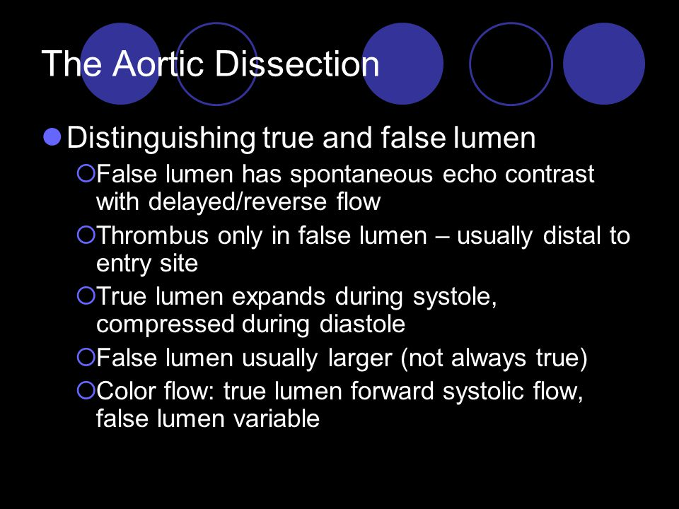 The Aortic Dissection Distinguishing true and false lumen  False lumen has spontaneous echo contrast with delayed/reverse flow  Thrombus only in false lumen – usually distal to entry site  True lumen expands during systole, compressed during diastole  False lumen usually larger (not always true)  Color flow: true lumen forward systolic flow, false lumen variable