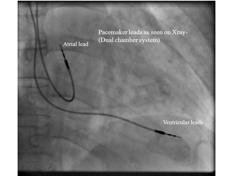 Pacemaker leads as seen on Xray- (Dual chamber system) Atrial lead Ventricular leads