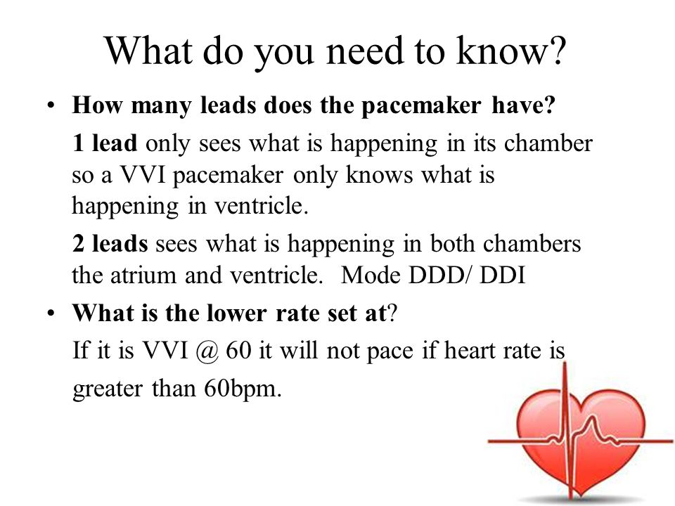 What do you need to know? How many leads does the pacemaker have? 1 lead only sees what is happening in its chamber so a VVI pacemaker only knows what