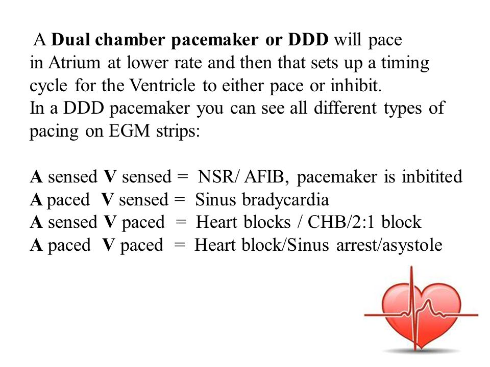 A Dual chamber pacemaker or DDD will pace in Atrium at lower rate and then that sets up a timing cycle for the Ventricle to either pace or inhibit.