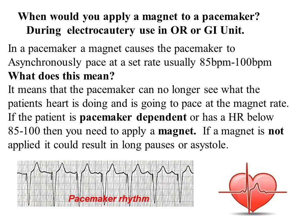 When would you apply a magnet to a pacemaker? During electrocautery use in OR or GI Unit. In a pacemaker a magnet causes the pacemaker to Asynchronous