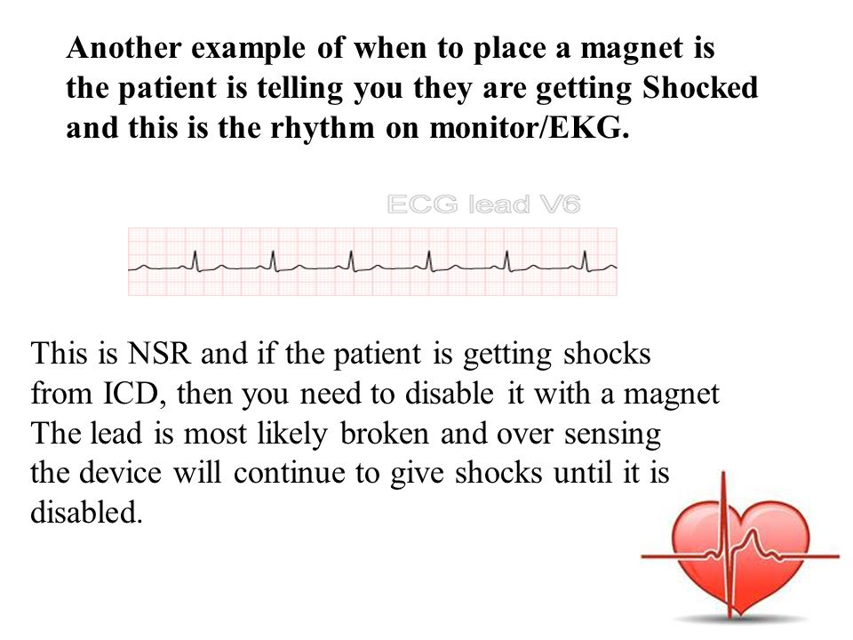 Another example of when to place a magnet is the patient is telling you they are getting Shocked and this is the rhythm on monitor/EKG. This is NSR an