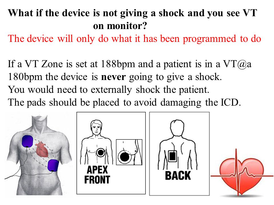 What if the device is not giving a shock and you see VT on monitor.