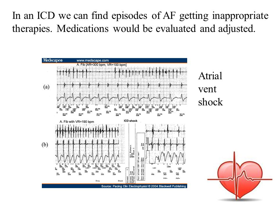 In an ICD we can find episodes of AF getting inappropriate therapies.