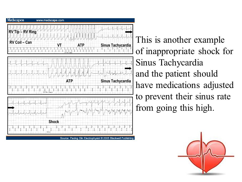 This is another example of inappropriate shock for Sinus Tachycardia and the patient should have medications adjusted to prevent their sinus rate from going this high.