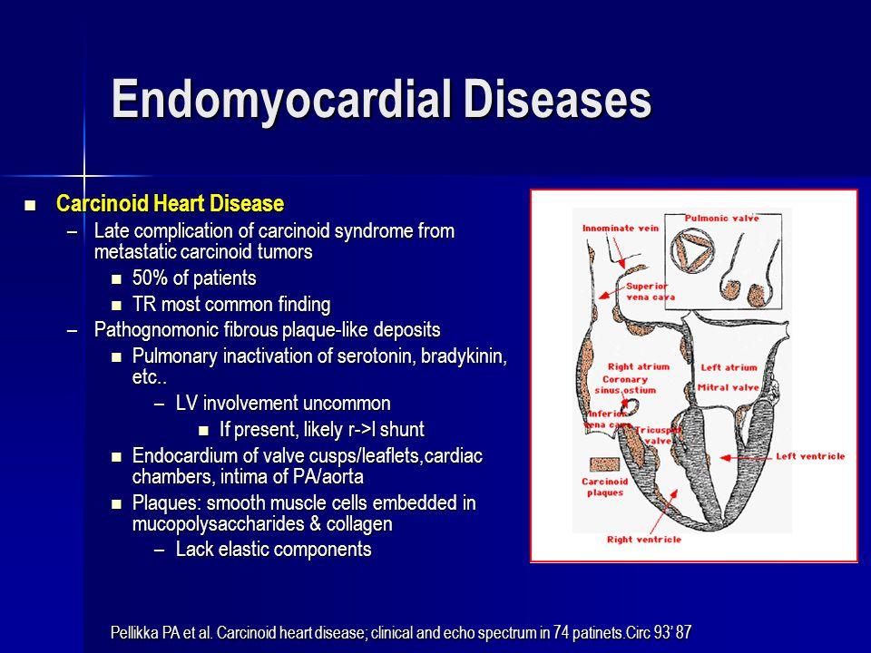 Endomyocardial Diseases Carcinoid Heart Disease Carcinoid Heart Disease –Late complication of carcinoid syndrome from metastatic carcinoid tumors 50%