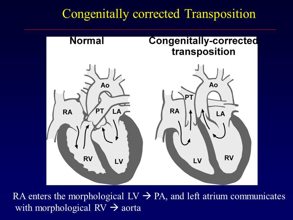 Congenitally corrected Transposition RA enters the morphological LV  PA, and left atrium communicates with morphological RV  aorta