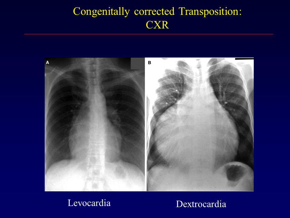 CXR Levocardia Dextrocardia