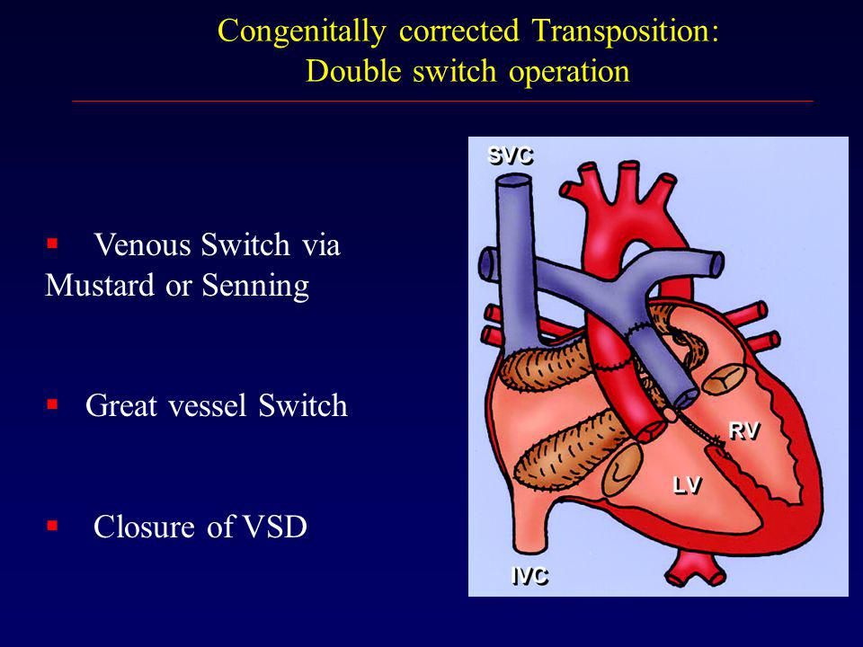 Congenitally corrected Transposition: Double switch operation  Venous Switch via Mustard or Senning  Great vessel Switch  Closure of VSD