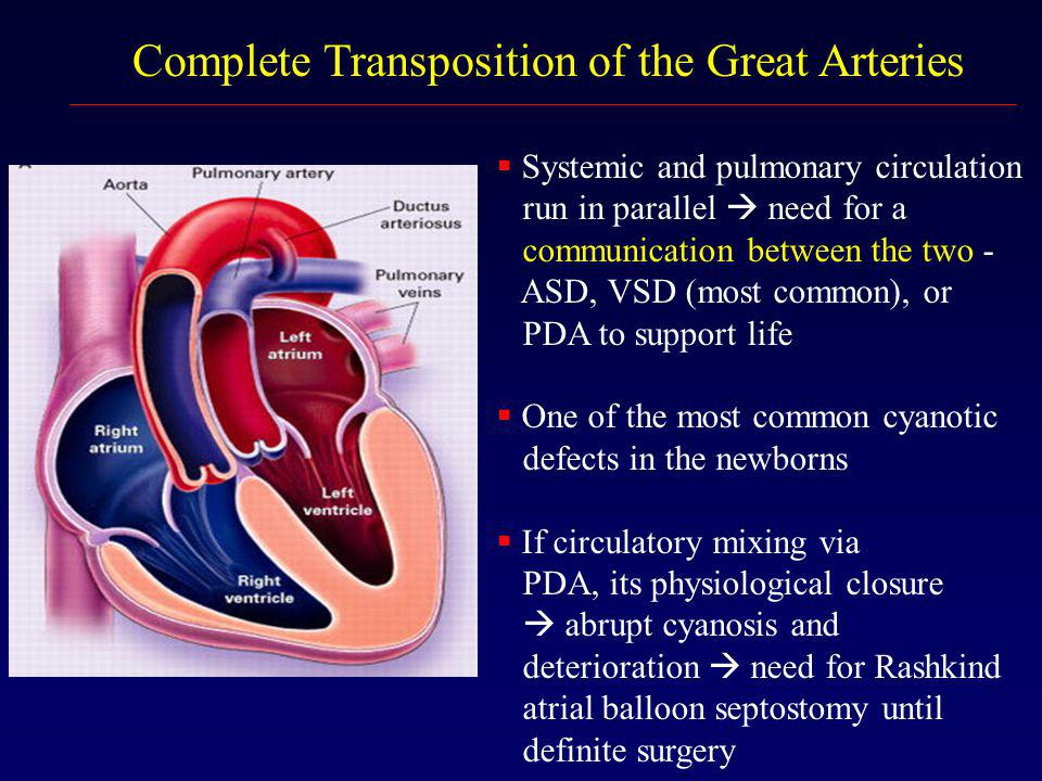 Complete Transposition of the Great Arteries  Systemic and pulmonary circulation run in parallel  need for a communication between the two - ASD, VS